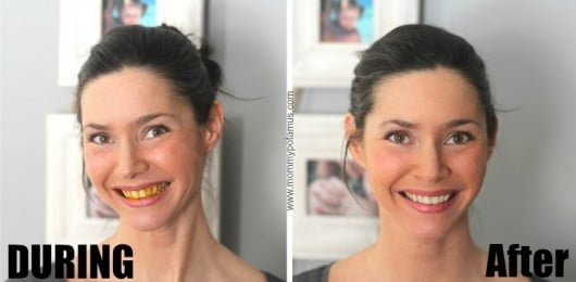 whitening-teeth-before-after-pic