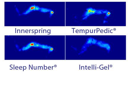 Intellibed pressure map