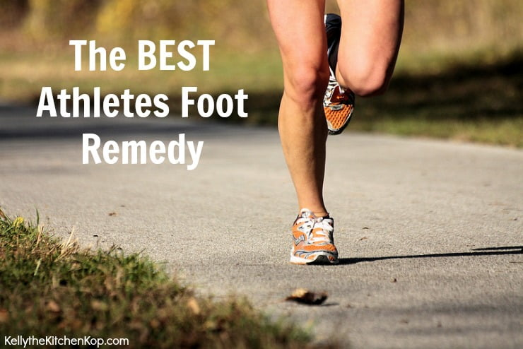 BEST Athletes Foot Remedy