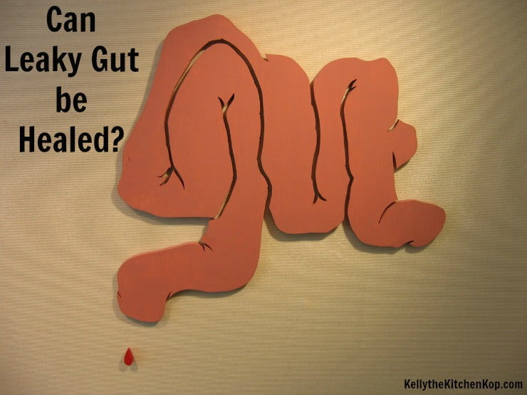 Can Leaky Gut be Healed